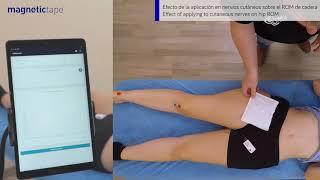 Lee más sobre el artículo Efecto de la aplicación de Magnetic Tape® en nervios cutáneos sobre el ROM de cadera