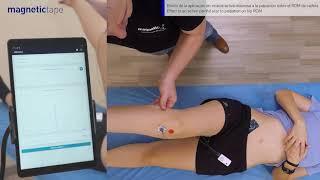 Lee más sobre el artículo Efecto de la aplicación de Magnetic Tape ® en cicatriz activa dolorosa sobre el ROM Interno de cadera.